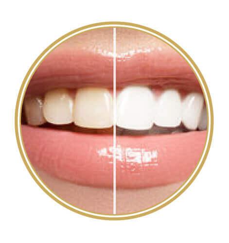Artisdental - beljenje zob