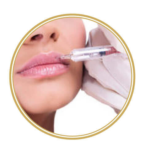 Artisdental - oblikovanje ustnic