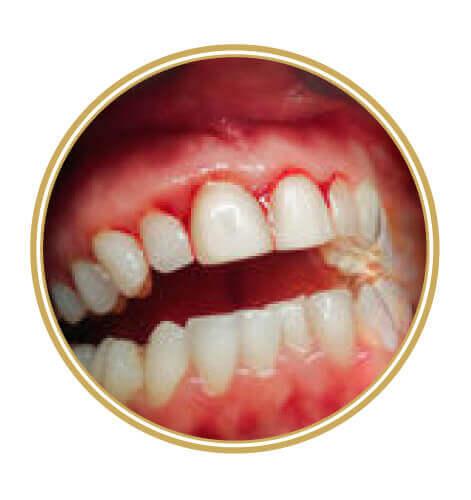 Artisdental - parodontologija
